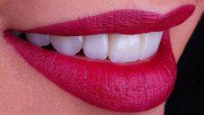 Faccette dentali artigianali